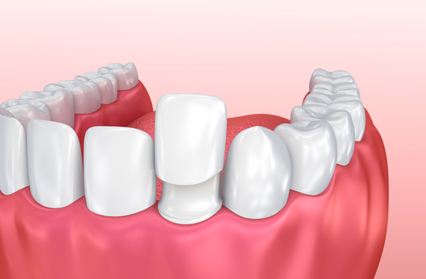 emergency tooth extraction in Muncie